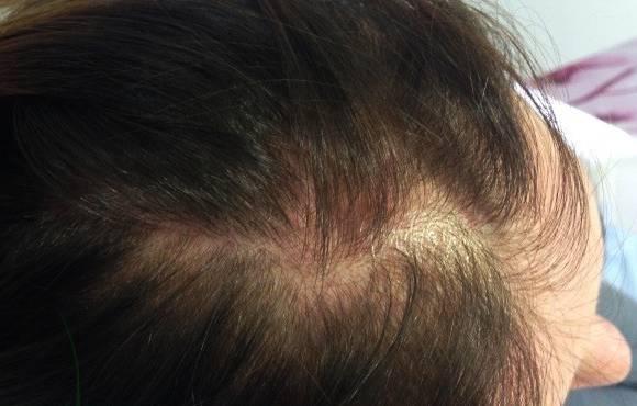 Козметика за коса за жени